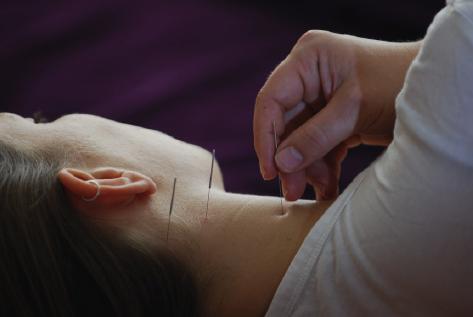 Akkupunktur Behandlung